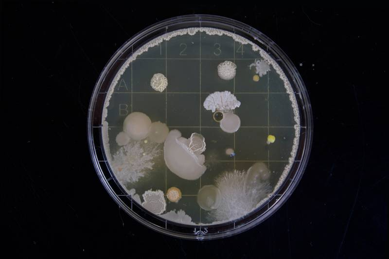 A friend of mine had to do some bacteria samples during her bachelor thesis. When i saw those i was instantly fascinated by the vast range of variation within this tiny microcosm.